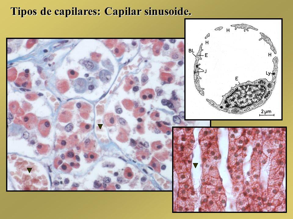 Tipos de capilares: Capilar sinusoide.