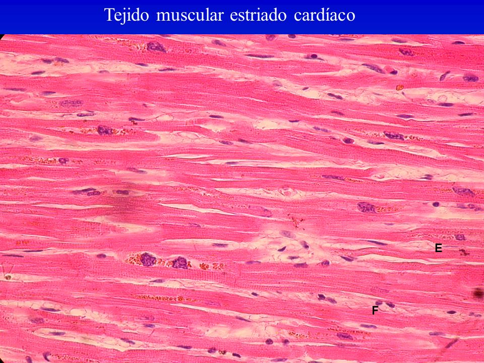 Tejido muscular estriado cardíaco F E