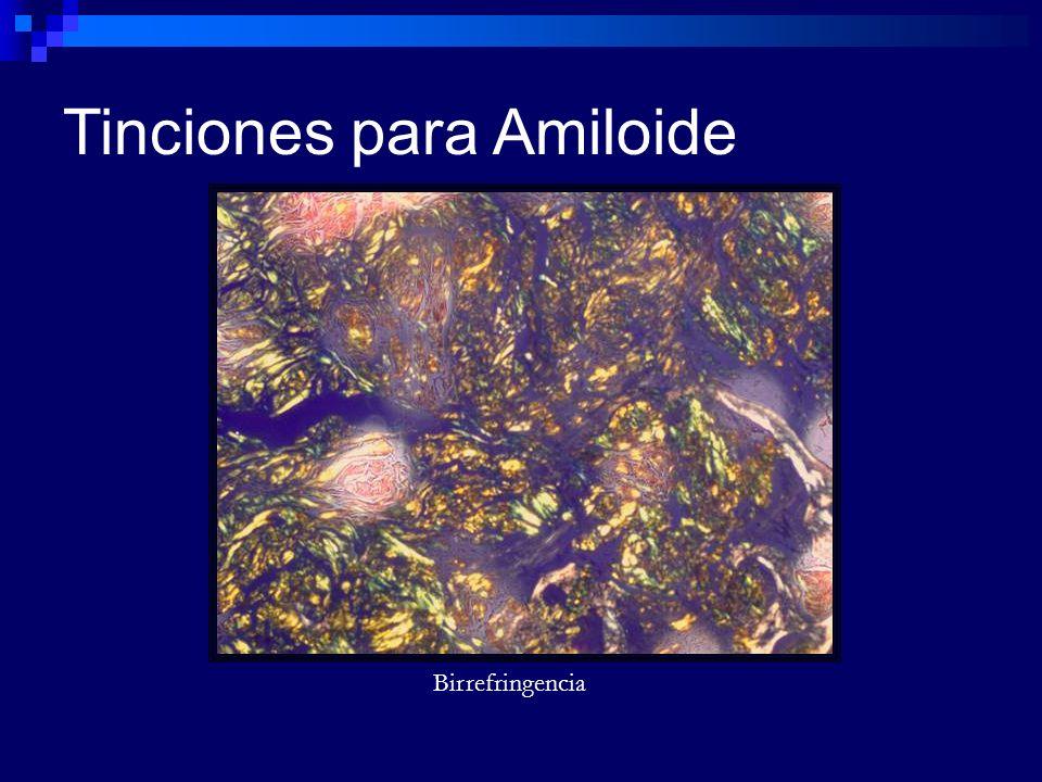 Birrefringencia Tinciones para Amiloide