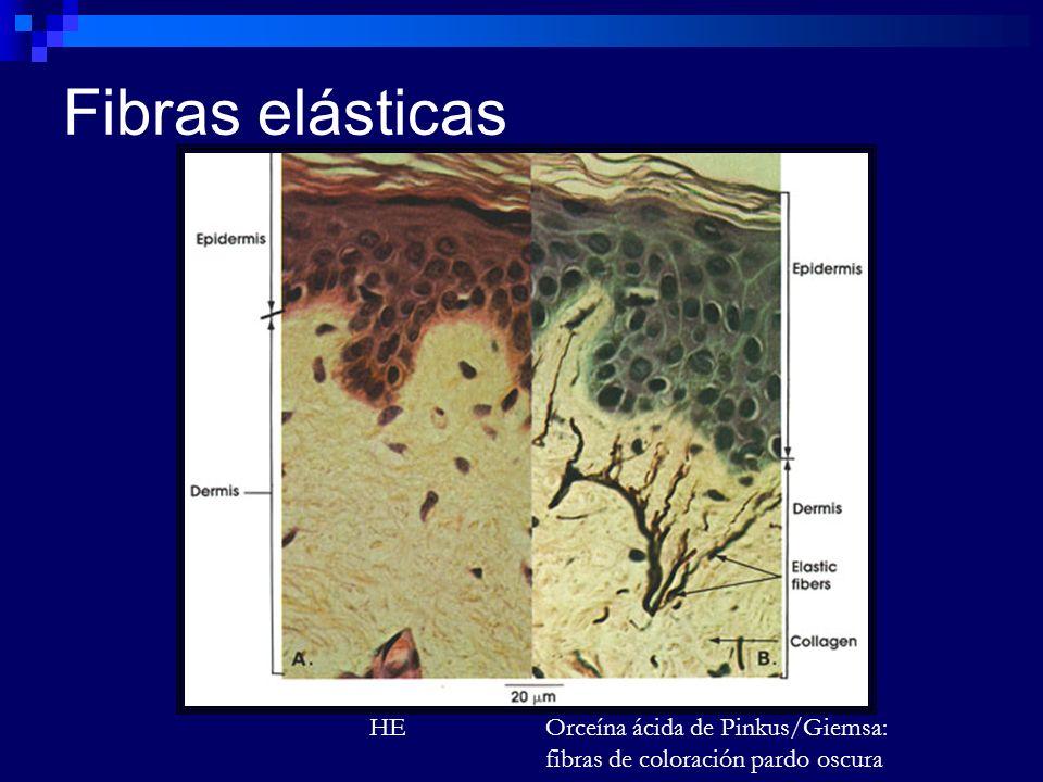 Fibras elásticas HE Orceína ácida de Pinkus/Giemsa: fibras de coloración pardo oscura