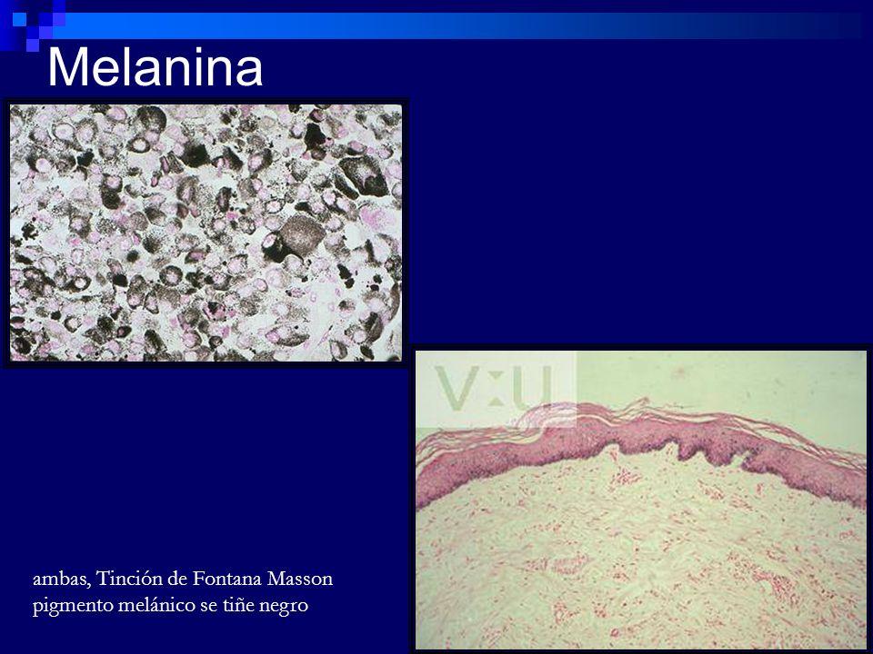 Melanina ambas, Tinción de Fontana Masson pigmento melánico se tiñe negro