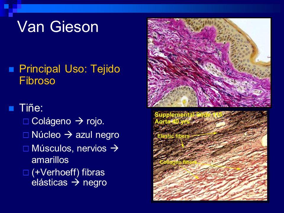 Van Gieson Principal Uso: Tejido Fibroso Tiñe: Colágeno rojo. Núcleo azul negro Músculos, nervios amarillos (+Verhoeff) fibras elásticas negro