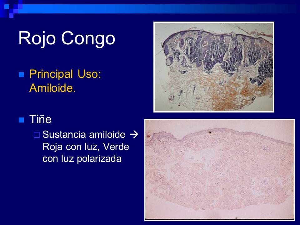 Rojo Congo Principal Uso: Amiloide. Tiñe Sustancia amiloide Roja con luz, Verde con luz polarizada