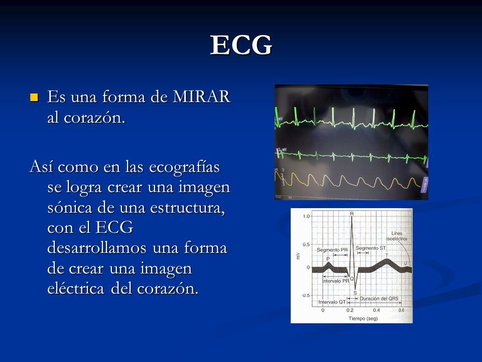 ECG Es una forma de MIRAR al corazón. Es una forma de MIRAR al corazón. Así como en las ecografías se logra crear una imagen sónica de una estructura,