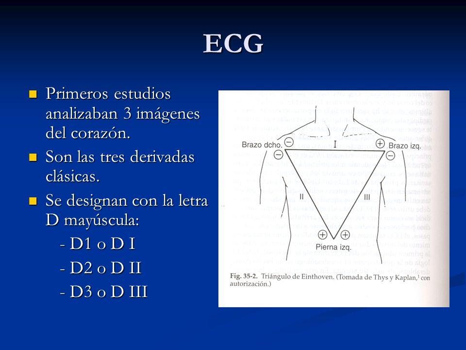ECG Primeros estudios analizaban 3 imágenes del corazón. Primeros estudios analizaban 3 imágenes del corazón. Son las tres derivadas clásicas. Son las