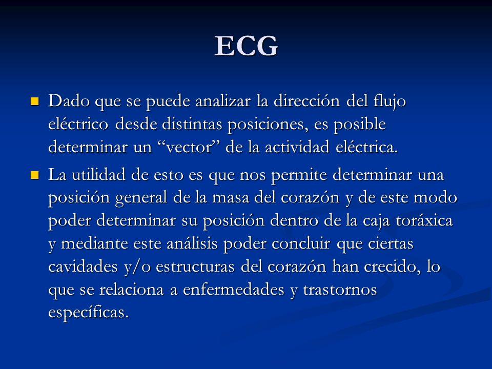 ECG Dado que se puede analizar la dirección del flujo eléctrico desde distintas posiciones, es posible determinar un vector de la actividad eléctrica.