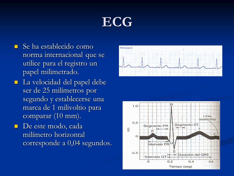 ECG Se ha establecido como norma internacional que se utilice para el registro un papel milimetrado. Se ha establecido como norma internacional que se