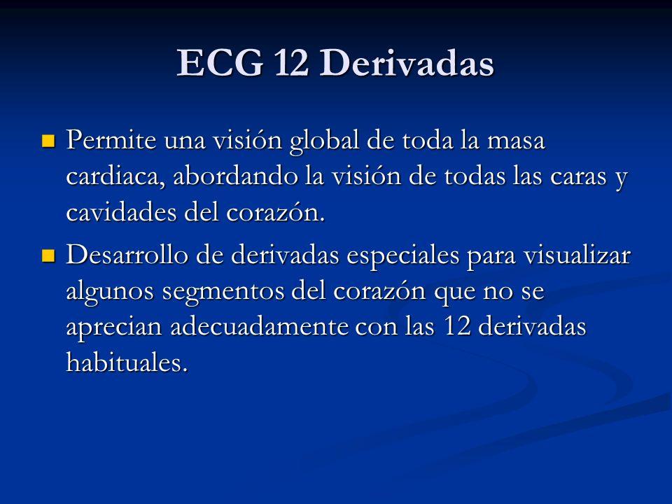 ECG 12 Derivadas Permite una visión global de toda la masa cardiaca, abordando la visión de todas las caras y cavidades del corazón. Permite una visió