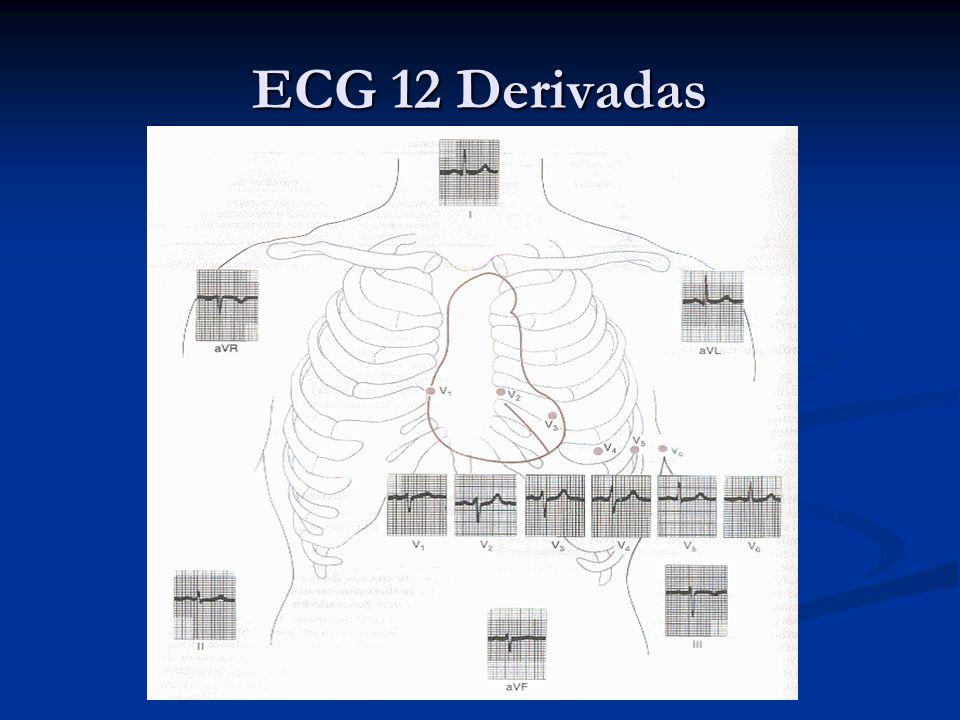 ECG 12 Derivadas
