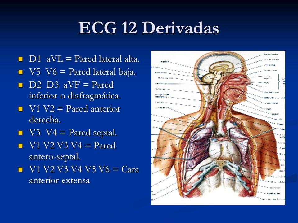 D1 aVL = Pared lateral alta. D1 aVL = Pared lateral alta. V5 V6 = Pared lateral baja. V5 V6 = Pared lateral baja. D2 D3 aVF = Pared inferior o diafrag