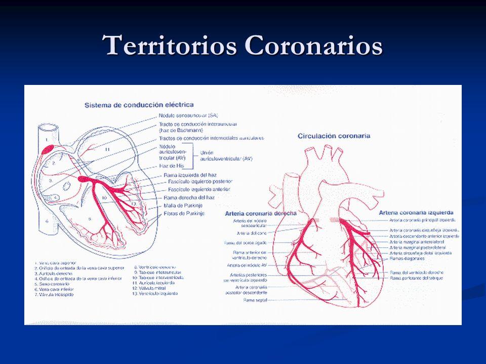 Territorios Coronarios