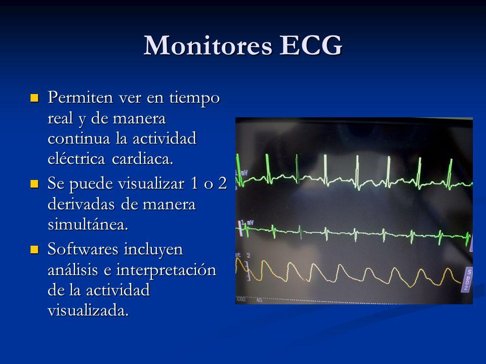 Monitores ECG Permiten ver en tiempo real y de manera continua la actividad eléctrica cardiaca. Permiten ver en tiempo real y de manera continua la ac