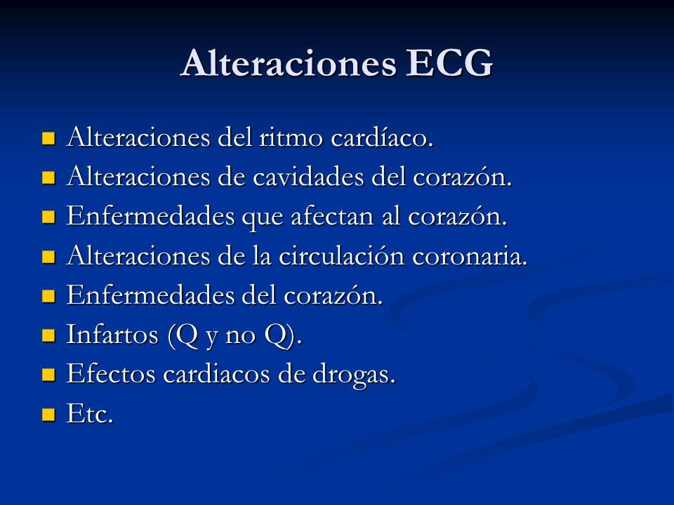 Alteraciones ECG Alteraciones del ritmo cardíaco. Alteraciones del ritmo cardíaco. Alteraciones de cavidades del corazón. Alteraciones de cavidades de