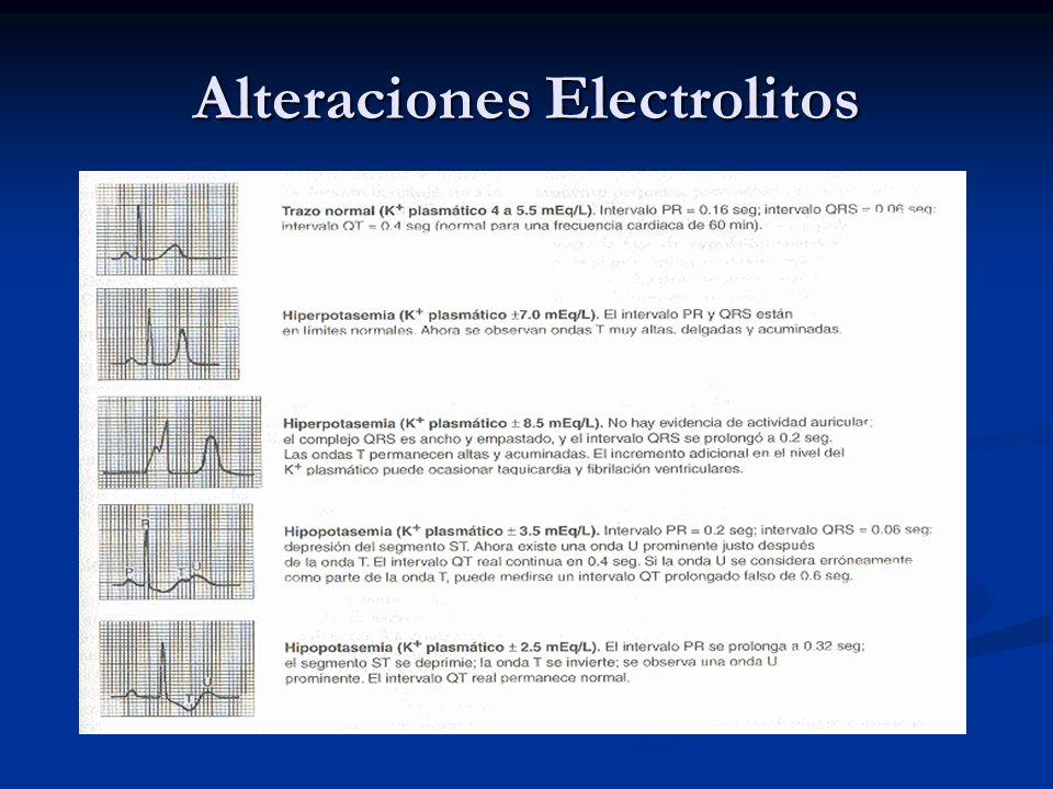 Alteraciones Electrolitos