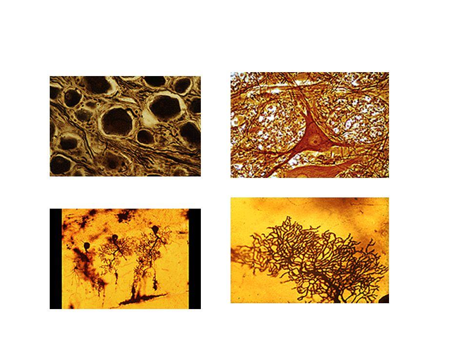 TIPOS DE NEURONAS Según el número y la distribución de sus prolongaciones, las neuronas se clasifican en: bipolares seudo-unipolares, (Fig 1) multipol