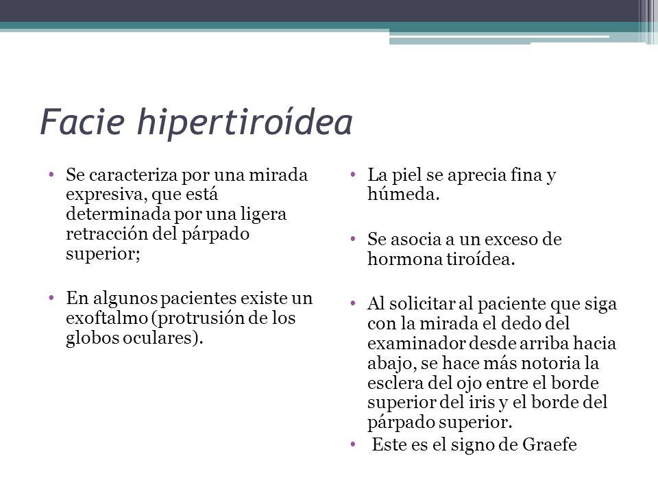 Facie hipertiroídea Se caracteriza por una mirada expresiva, que está determinada por una ligera retracción del párpado superior; En algunos pacientes