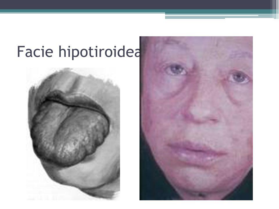 Facie hipotiroidea