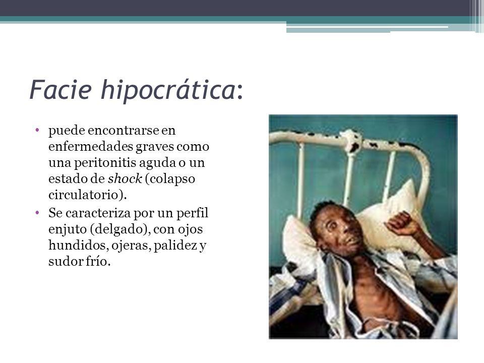 Facie hipocrática: puede encontrarse en enfermedades graves como una peritonitis aguda o un estado de shock (colapso circulatorio). Se caracteriza por