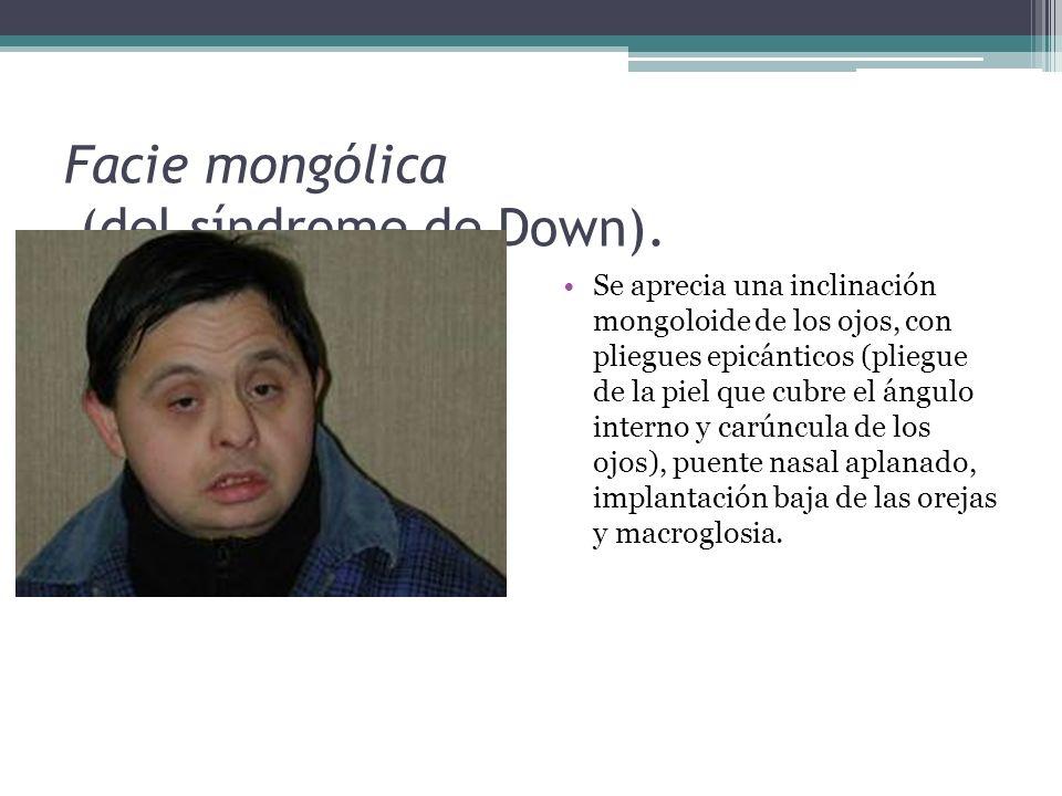 Facie mongólica (del síndrome de Down). Se aprecia una inclinación mongoloide de los ojos, con pliegues epicánticos (pliegue de la piel que cubre el á