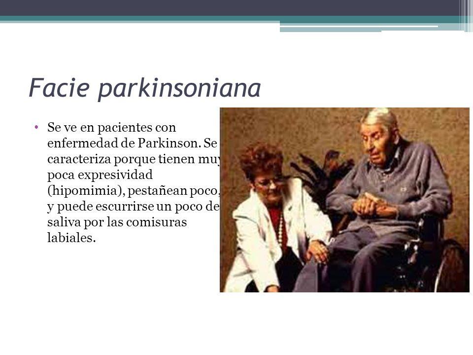 Facie parkinsoniana Se ve en pacientes con enfermedad de Parkinson. Se caracteriza porque tienen muy poca expresividad (hipomimia), pestañean poco, y