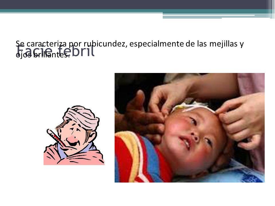 Facie febril Se caracteriza por rubicundez, especialmente de las mejillas y ojos brillantes.