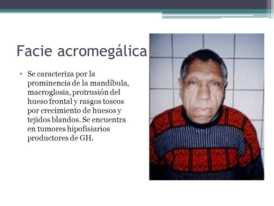 Facie acromegálica Se caracteriza por la prominencia de la mandíbula, macroglosia, protrusión del hueso frontal y rasgos toscos por crecimiento de hue