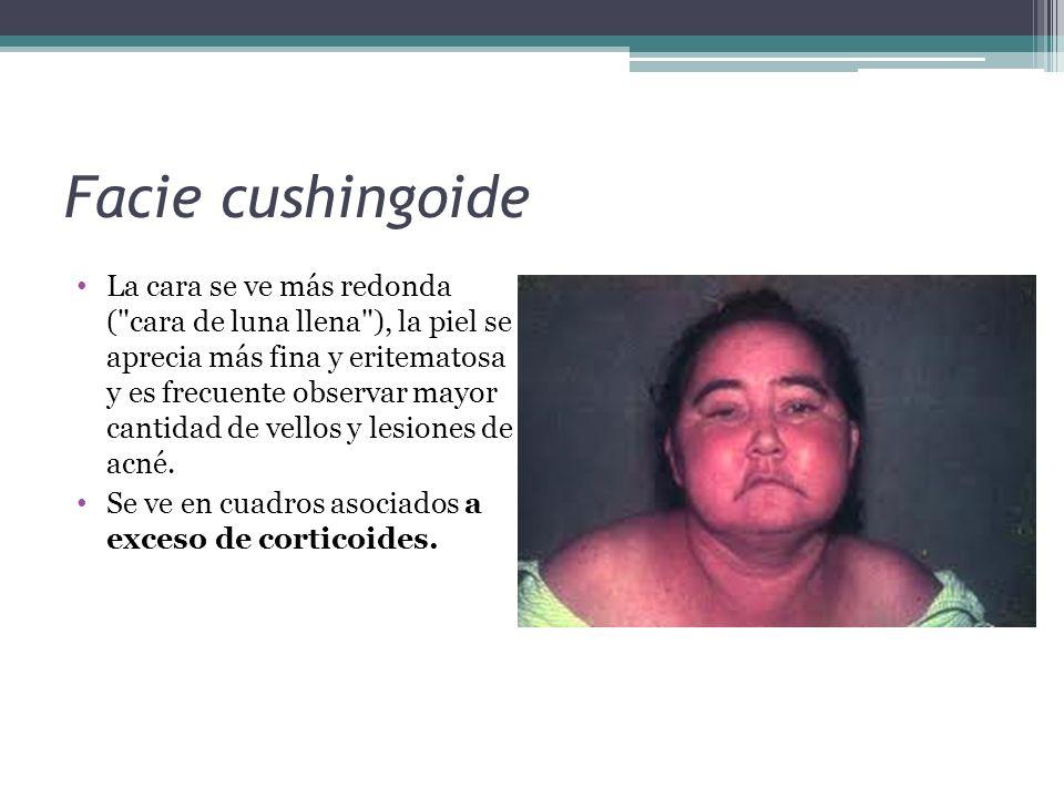 Facie cushingoide La cara se ve más redonda (
