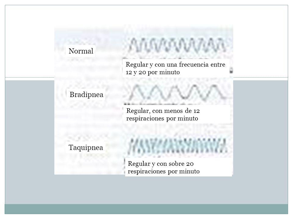 20 Normal Bradipnea Taquipnea Regular y con una frecuencia entre 12 y 20 por minuto Regular, con menos de 12 respiraciones por minuto Regular y con so