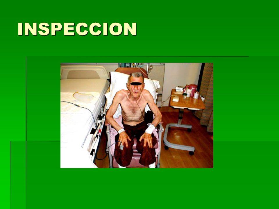 RESPIRACION NORMAL/PARADOJICA INSPIRACION ESPIRACION