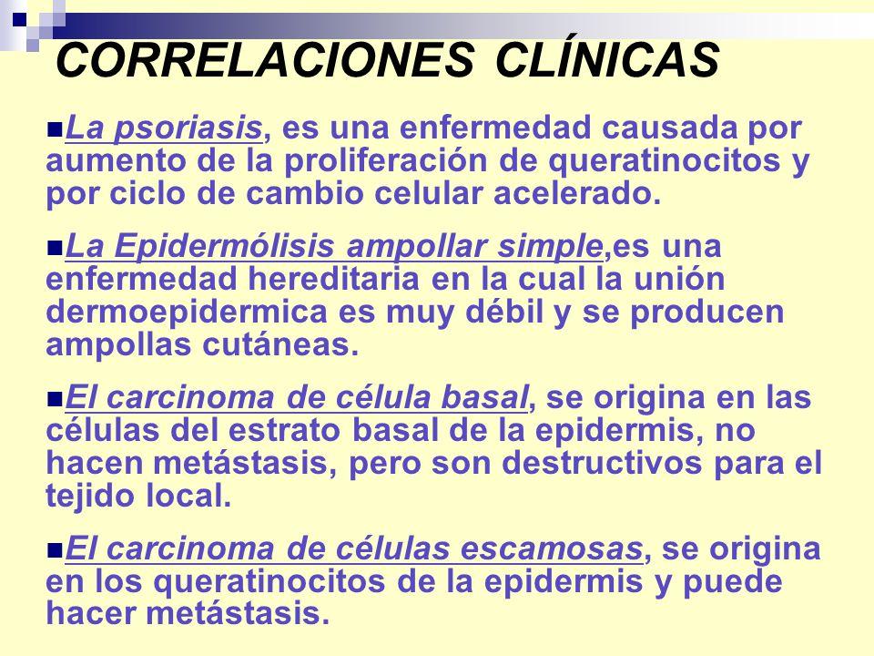 CORRELACIONES CLÍNICAS La psoriasis, es una enfermedad causada por aumento de la proliferación de queratinocitos y por ciclo de cambio celular acelera