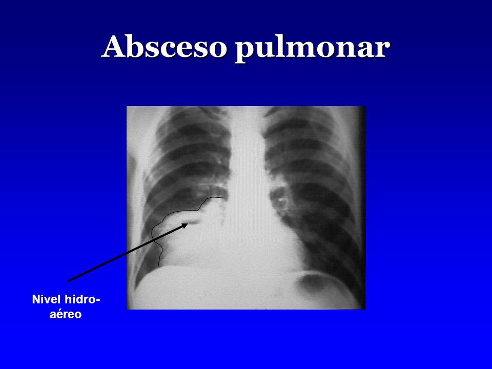 Absceso pulmonar Nivel hidro- aéreo