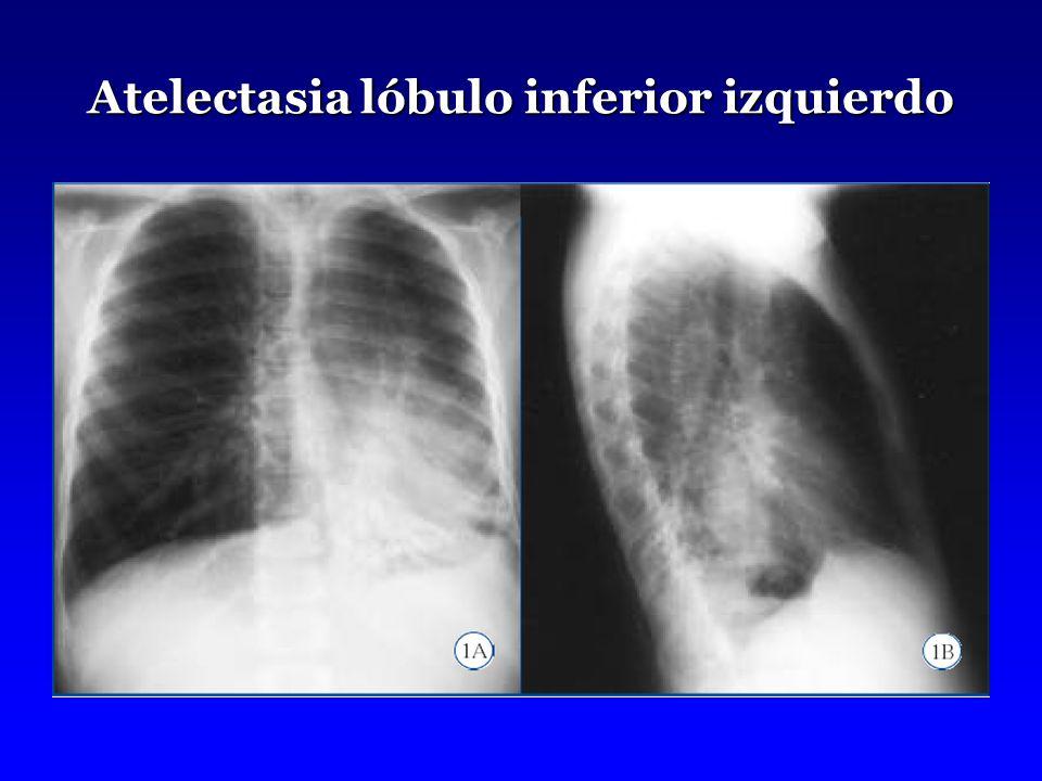 Atelectasia lóbulo inferior izquierdo