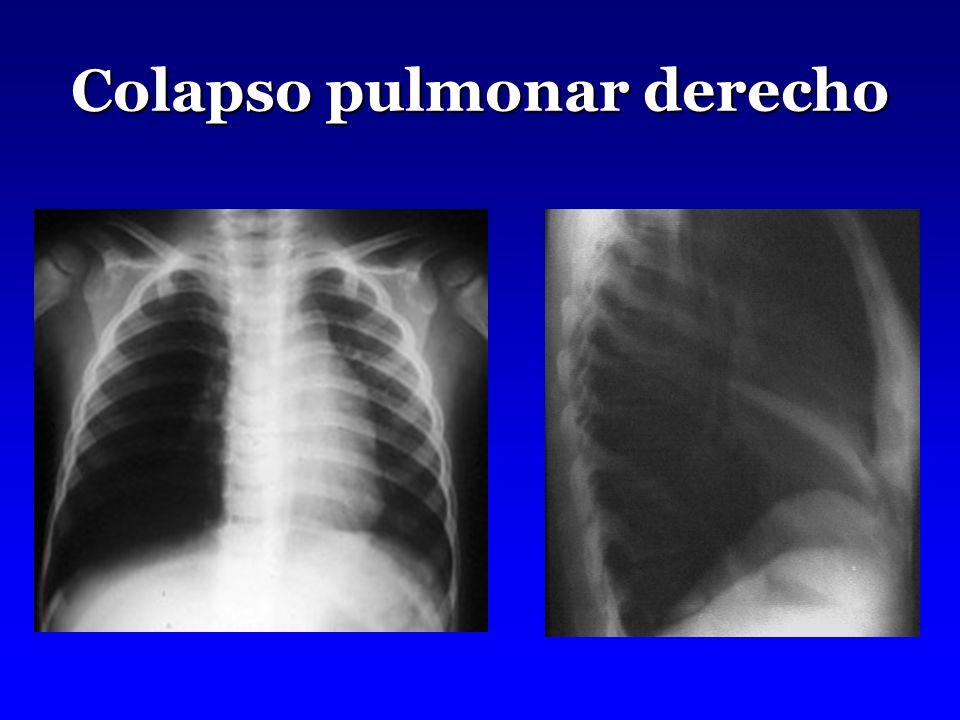 Colapso pulmonar derecho