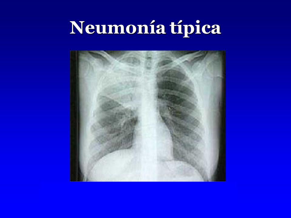 Neumonía típica