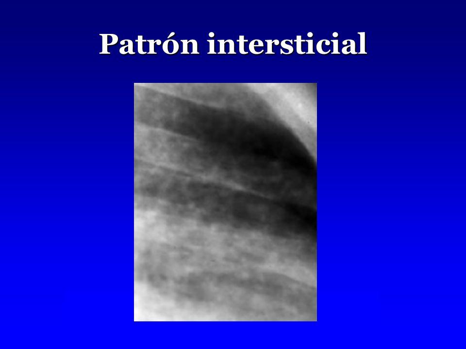 Patrón intersticial