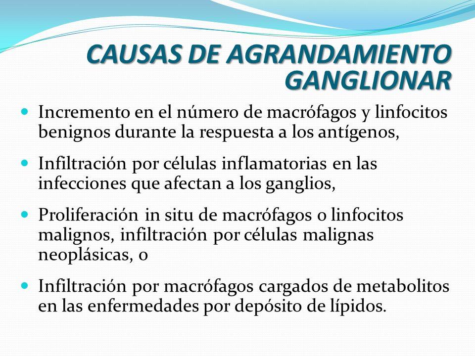 CAUSAS DE AGRANDAMIENTO GANGLIONAR Incremento en el número de macrófagos y linfocitos benignos durante la respuesta a los antígenos, Infiltración por