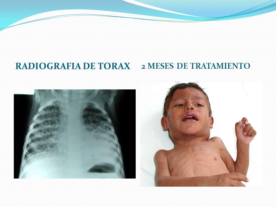 RADIOGRAFIA DE TORAX 2 MESES DE TRATAMIENTO