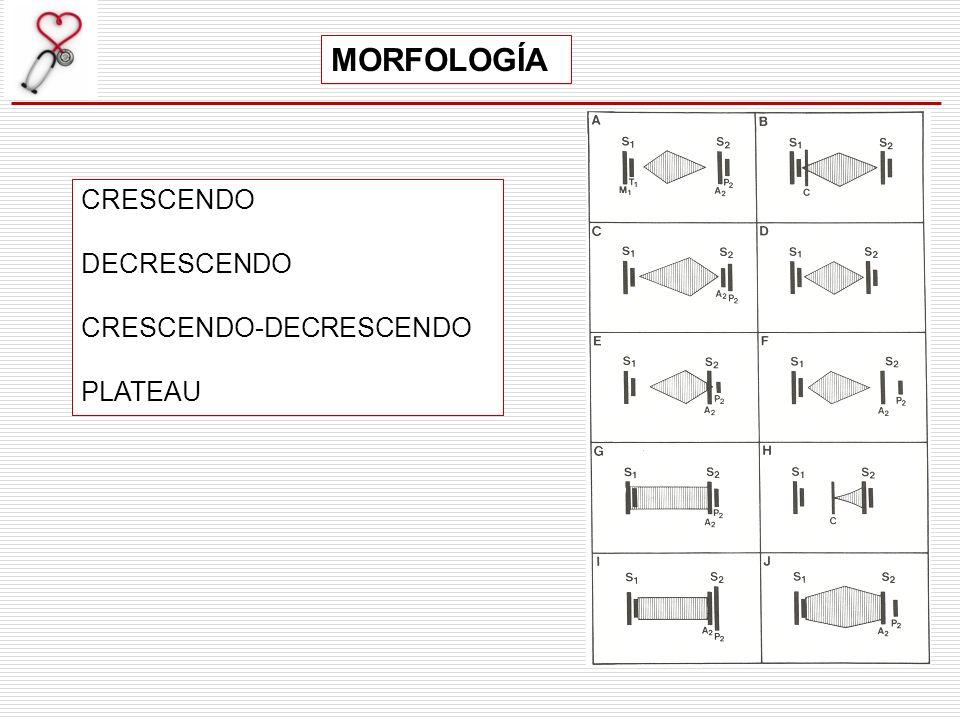 MORFOLOGÍA CRESCENDO DECRESCENDO CRESCENDO-DECRESCENDO PLATEAU