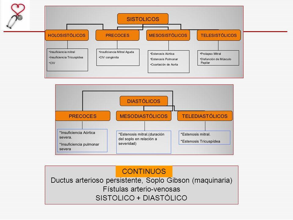 CONTINUOS Ductus arterioso persistente, Soplo Gibson (maquinaria) Fístulas arterio-venosas SISTOLICO + DIASTÓLICO CONTINUOS