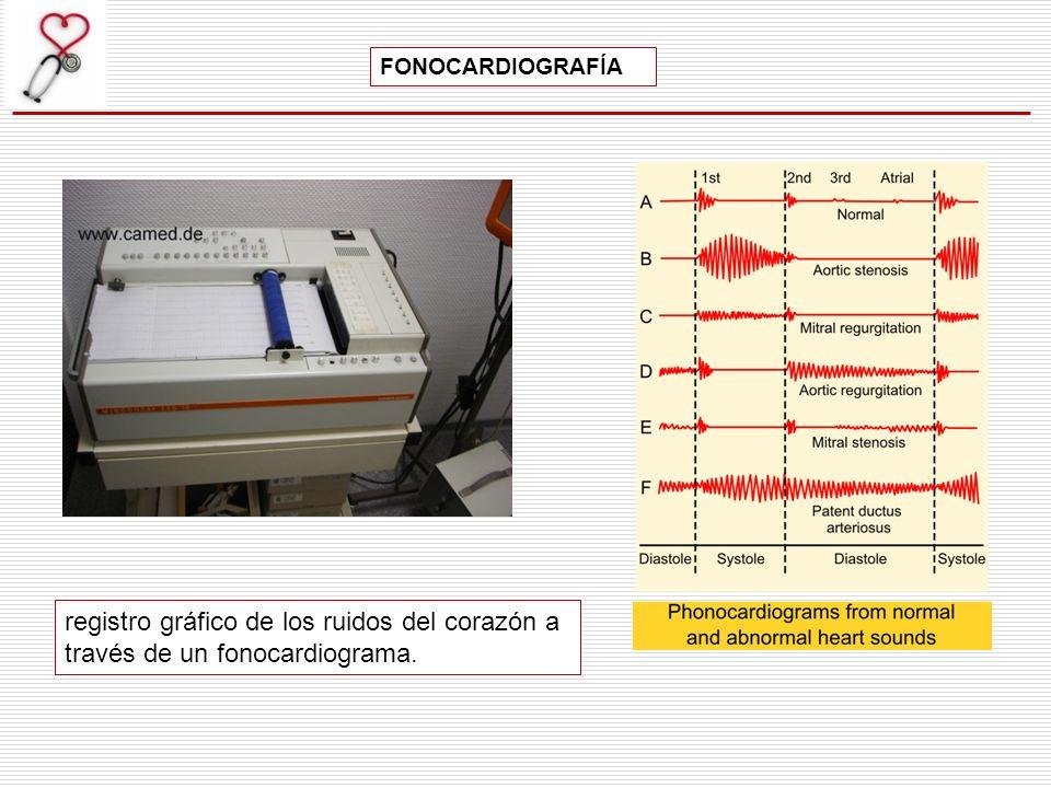 registro gráfico de los ruidos del corazón a través de un fonocardiograma. FONOCARDIOGRAFÍA