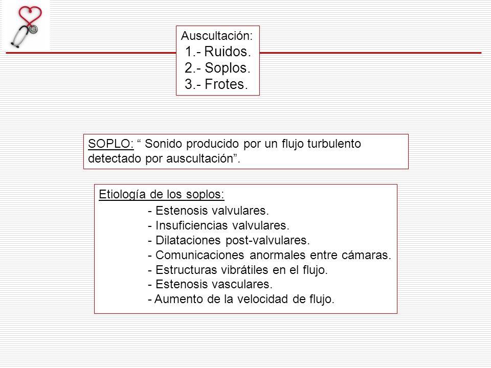 SOPLO: Sonido producido por un flujo turbulento detectado por auscultación. Auscultación: 1.- Ruidos. 2.- Soplos. 3.- Frotes. Etiología de los soplos:
