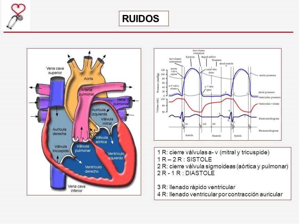 1 R: cierre válvulas a- v (mitral y tricuspide) 1 R – 2 R : SISTOLE 2 R: cierre válvula sigmoideas (aórtica y pulmonar) 2 R - 1 R : DIASTOLE 3 R: llen