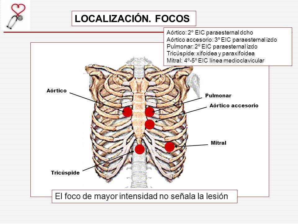 1.- Sistólicos (1R- 2R).- Holosistólicos-Pansistólicos.