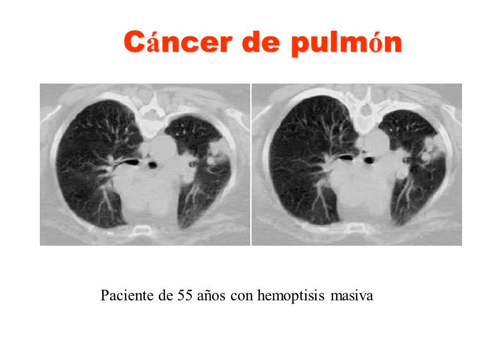 Paciente de 55 años con hemoptisis masiva C á ncer de pulm ó n