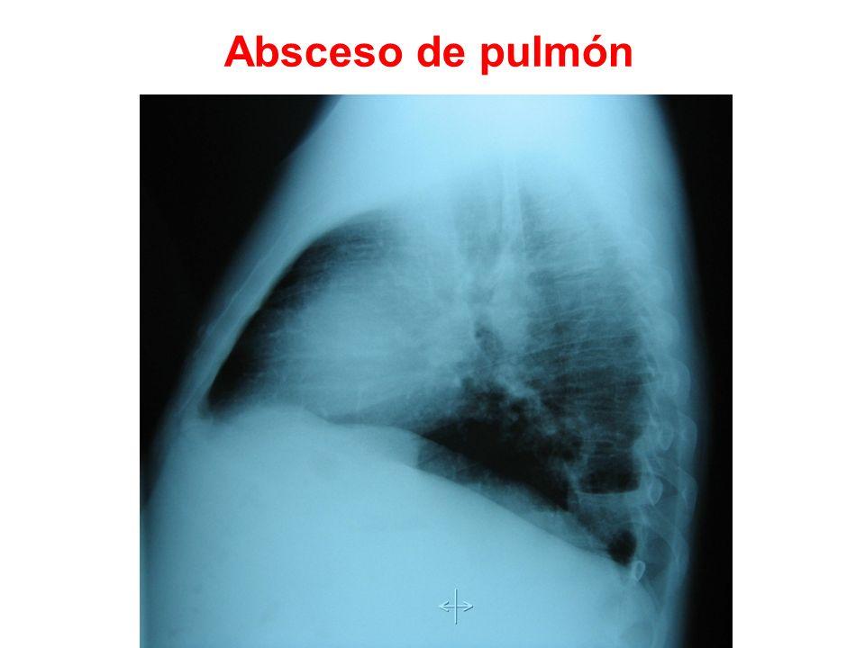 Absceso de pulmón