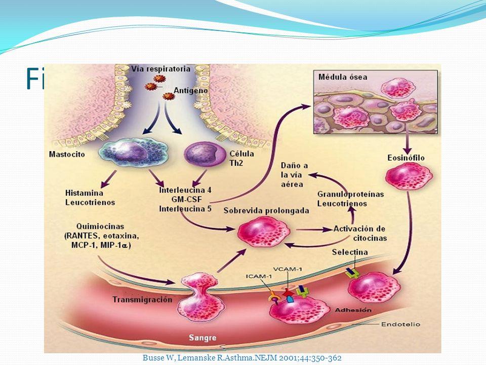Fisiopatología Busse W, Lemanske R.Asthma.NEJM 2001;44:350-362