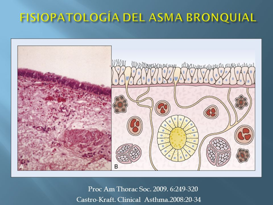 BIOPSIAS BRONQUIALES Castro-Kraft. Clinical Asthma.2008:20-34