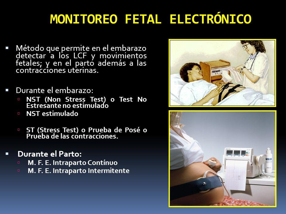 Monitoreo Fetal Electrónico MONITOREO BASAL DINAMICA UTERINA ESPORADICA, NO HAY DESACELERACIONES