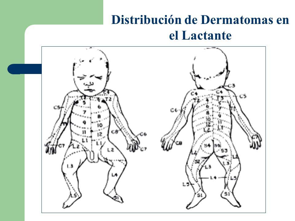 Distribución de Dermatomas en el Lactante