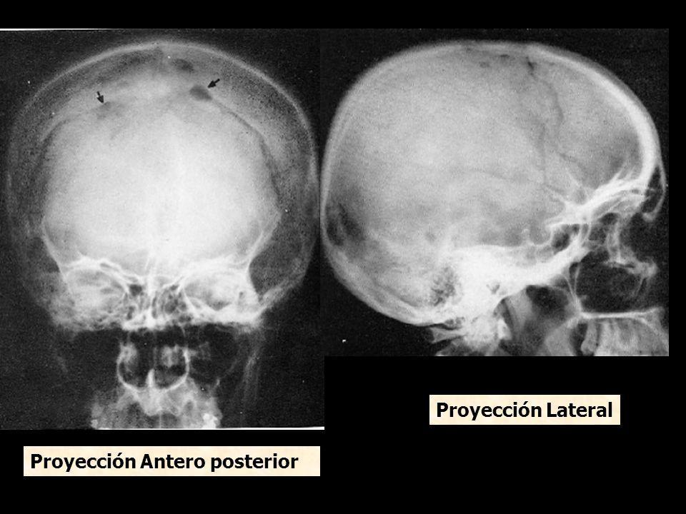 Proyección Antero posterior Proyección Lateral